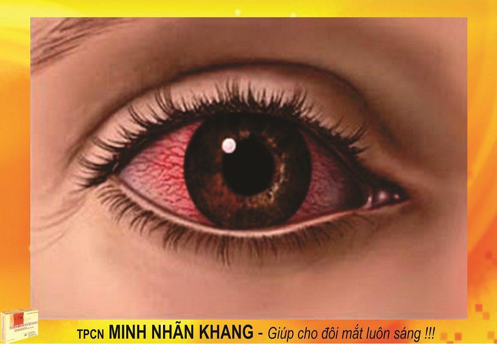 Hình ảnh minh họa mắt bị dị ứng
